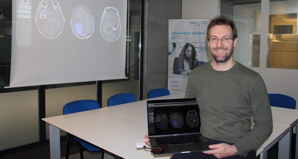 La HES-SO Valais-Wallis décroche deux projets nationaux dans la médecine personnalisée digitale!